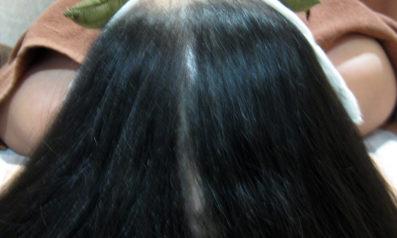 45歳 女性 発毛コース(6ヵ月)【40歳を越えて頭頂部の抜け毛が激しくなった】 After