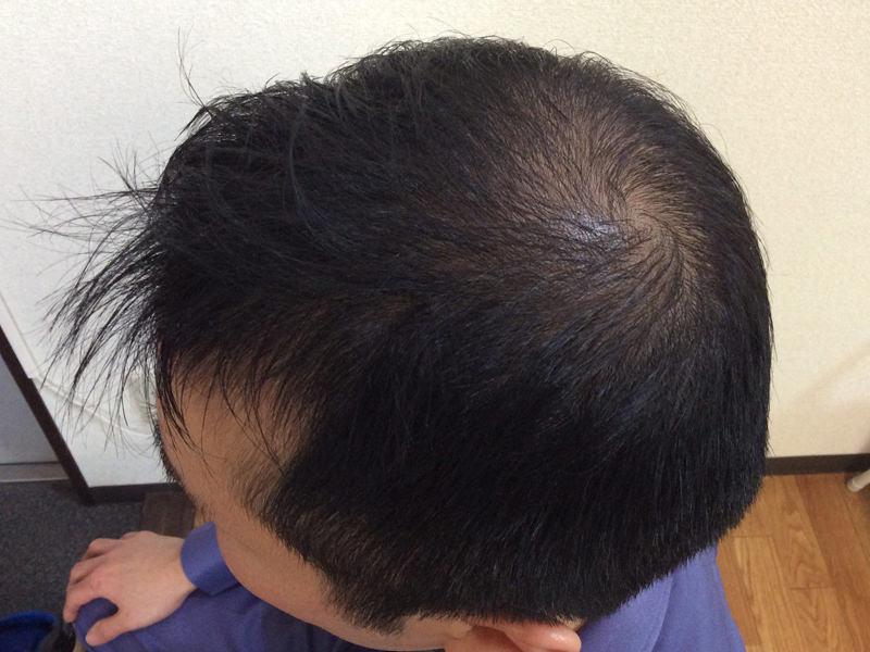 38歳 男性 発毛コース24回(3ヵ月)【抜け毛のスピードに恐怖を感じていた】 After
