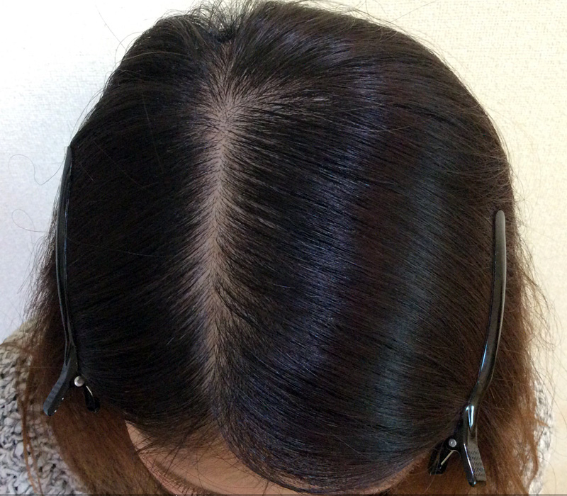 32歳 女性 発毛コース24回(12ヵ月)【前髪と分け目の悩み】 After