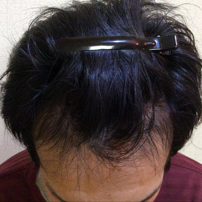 31歳 男性 発毛保証コース(6ヵ月)【生え際の後退で悩む】 After
