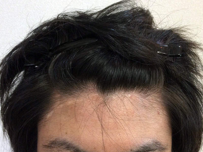 28歳 男性 発毛コース24回(6ヵ月)【M字の薄毛ハーグ療法で効果なし】 After
