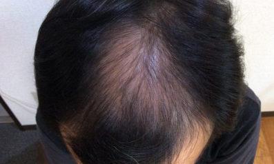 48歳 男性 発毛保証コース24回(6ヵ月)【お試し体験コースから開始】 After
