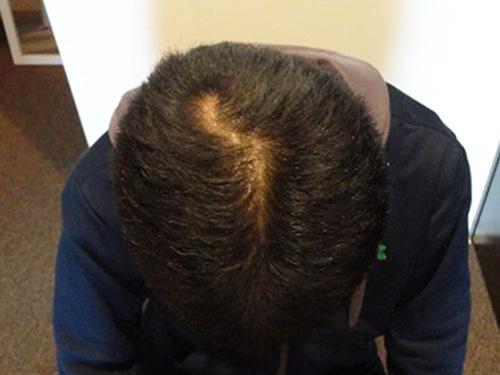 29歳 男性 発毛保証24回(5ヵ月)【ネットで調べてまずは相談しました】 After