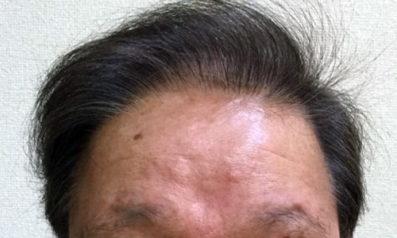 62歳 男性 発毛保証48回(12ヵ月)【壮年性脱毛症が気になり植毛を試したが発毛で良かった】 After
