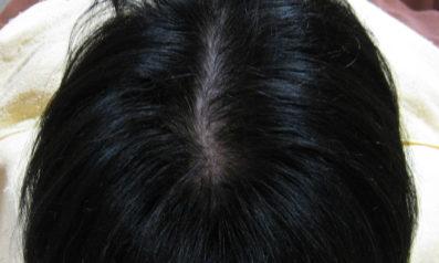 50歳 女性 発毛コース12回x2(8ヵ月)【薄毛が気になり帽子を常に使用していた】 After