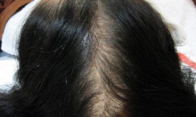 45歳 女性 発毛コース(6ヵ月)【40歳を越えて頭頂部の抜け毛が激しくなった】 Befor