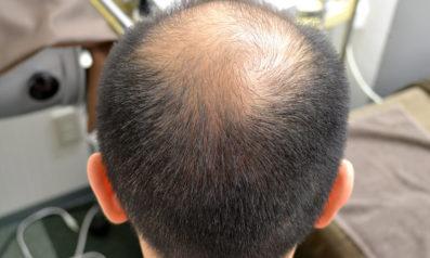 35歳 男性 発毛コース24回(3ヵ月)【発毛実績と価格の安さで選びました】 Befor