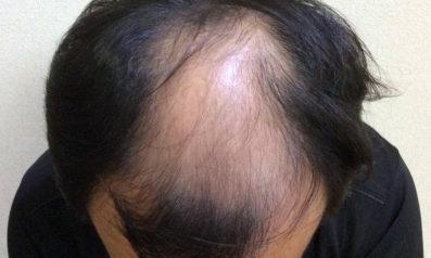 48歳 男性 発毛保証コース24回(6ヵ月)【お試し体験コースから開始】 Befor