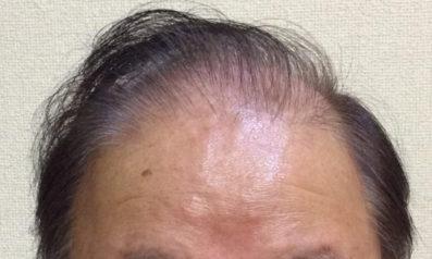 62歳 男性 発毛保証48回(12ヵ月)【壮年性脱毛症が気になり植毛を試したが発毛で良かった】 Befor