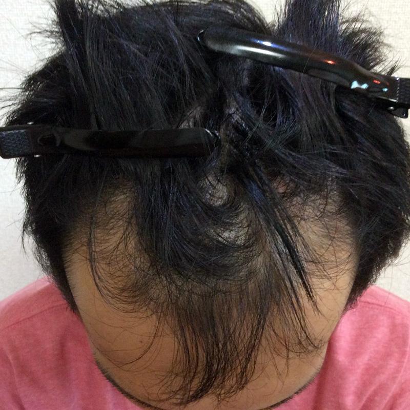 31歳 男性 発毛保証コース(6ヵ月)【生え際の後退で悩む】 Befor