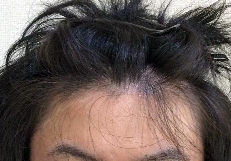 28歳 男性 発毛コース24回(6ヵ月)【M字の薄毛ハーグ療法で効果なし】 Befor