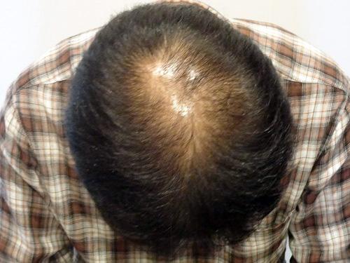29歳 男性 発毛保証24回(5ヵ月)【ネットで調べてまずは相談しました】 Befor