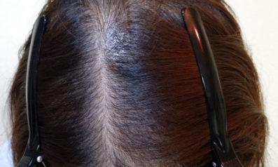 32歳 女性 発毛コース24回(12ヵ月)【前髪と分け目の悩み】 Befor