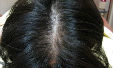 50歳 女性 発毛コース12回x2(8ヵ月)【薄毛が気になり帽子を常に使用していた】 Befor