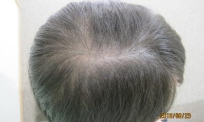 22歳 女性 発毛コース24回(1ヵ月)*4回目の施術終了時の途中経過 Befor