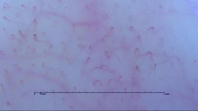 22歳 女性 珪素(Snowdrop)でわずか1週間で血流改善!! Befor