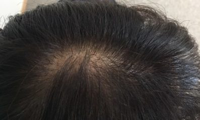 59歳 女性 京都郡  発毛コース12回(5回目終了頭注経過)【白髪染めで頭皮が炎症・抜け毛増加で悩む毎日】 After