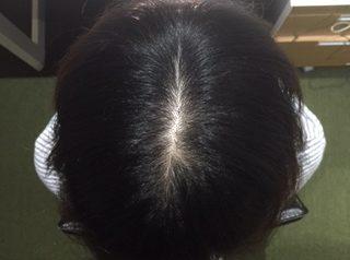 38歳 女性 発毛コース24回コース(4か月)【薬を使わない療法に安心できた】 After