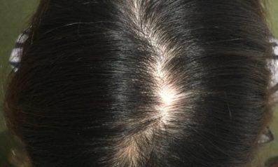 38歳 女性 発毛コース24回コース(4か月)【薬を使わない療法に安心できた】 Befor