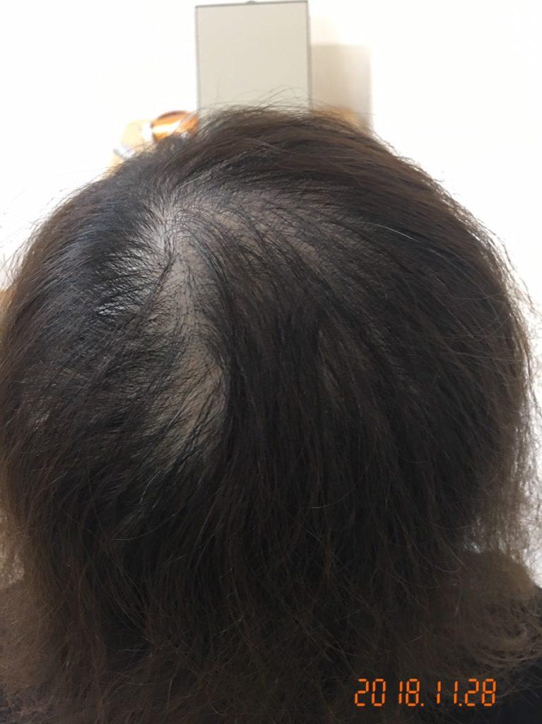30代 女性  北九州 発毛コース24回 5回目の施術終了時の途中経過 【2,3年前から抜け毛が激しくなった】 After