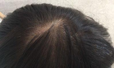 59歳 女性 京都郡  発毛コース終了【白髪染めで頭皮が炎症・抜け毛増加で悩む毎日】 After