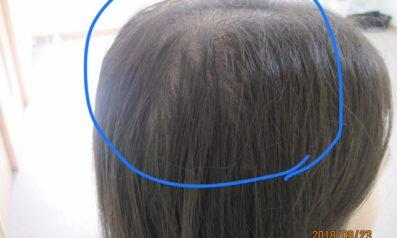 22歳 女性 発毛コース24回 18回目の施術終了【後ろに人から立たれると嫌だった】 Befor