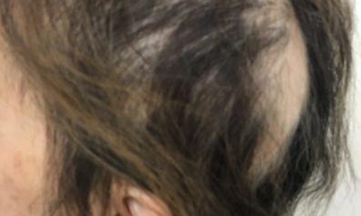 60代 女性 大分発毛コース24回 15回終了時点【円形の露出箇所が多く悩んでいた】 Befor