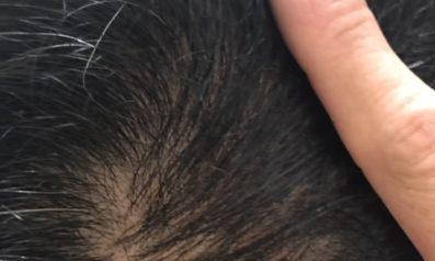40代 男性 大分発毛コース12回月2回の施術5ヵ月【半年前くらいから頭頂部の抜け毛が気になっていた】 After