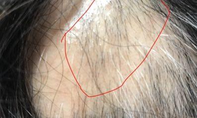 60代 女性 大分発毛コース24回3か月間の施術で発毛開始!【円形脱毛症に悩んでいた】 After