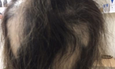 60代 女性 大分/発毛コース24回終了【インターフェロンで一時は全ての髪が抜けた】 Befor
