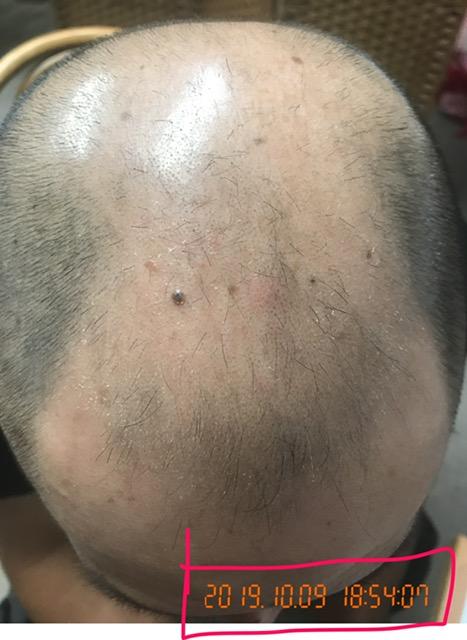 30代 男性 AGA(男性型脱毛症)発毛コースを開始して7か月! Befor