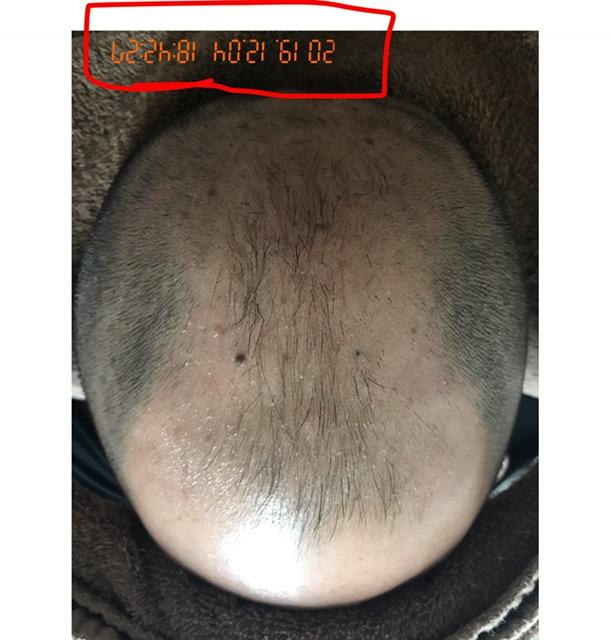30代 男性 AGA(男性型脱毛症)発毛コースを開始して7か月! After