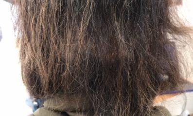 60代 女性 大分/発毛コース24回終了【インターフェロンで一時は全ての髪が抜けた】 After