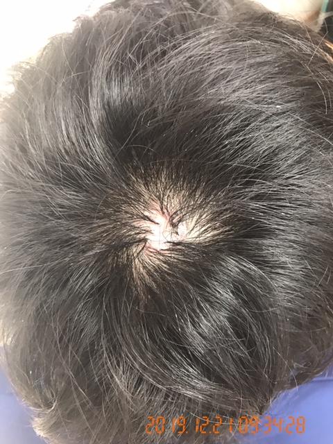 30代 男性 発毛コース24回【頭頂部の赤いできものから薄毛が進行】 After