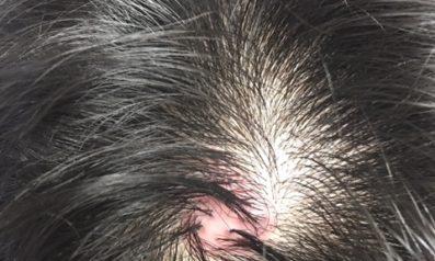 30代 男性 発毛コース24回【頭頂部の赤いできものから薄毛が進行】 Befor
