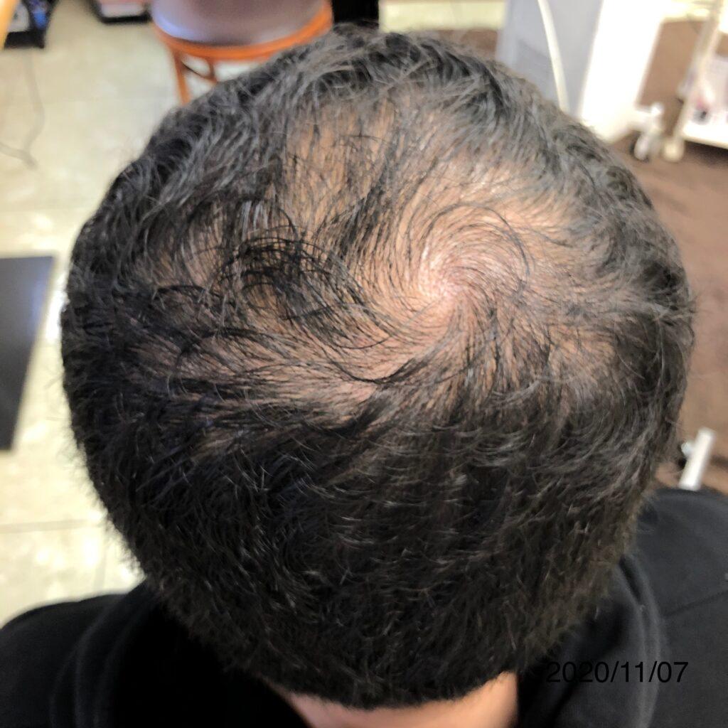 20代男性AGA 発毛コースを開始して約2ヶ月の変化! 大分/中津 Befor