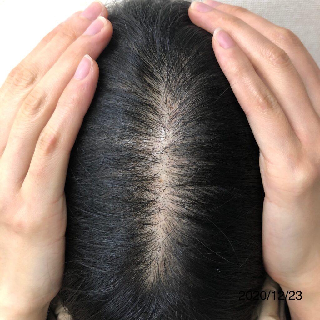 20代女性 発毛コース12回 【頭頂部が薄くなり、悩まされていた】 大分/中津 After