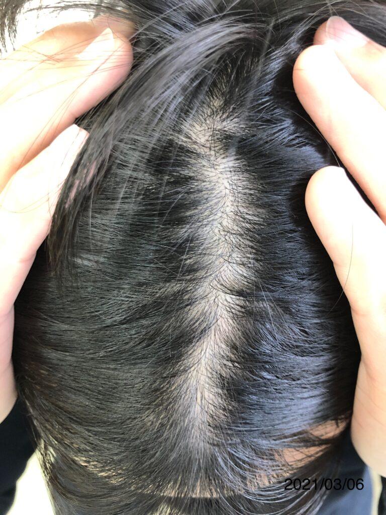 20代男性 発毛コース24回 全体的にボリューム感が増しました!【施術16回目】 大分/中津 Befor