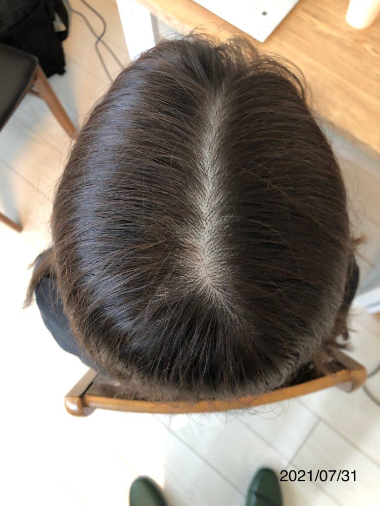 20代女性 発毛コース12回 【施術8回目】 亀裂が改善!!大分/中津 After