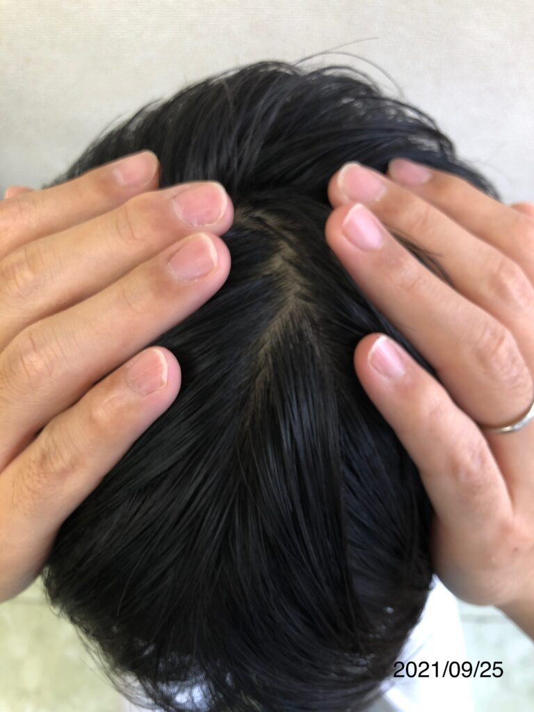 20代男性 発毛コース24回 全体的にボリューム感が増しました!【施術16回目】 大分/中津 After